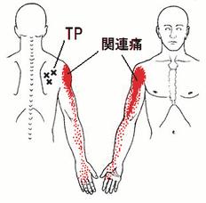 棘下筋トリポ1.png