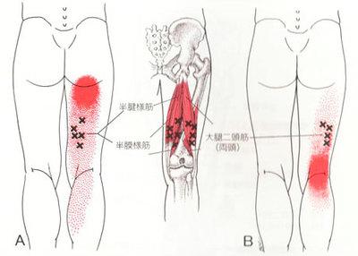 トリガー大腿二頭筋1.jpg