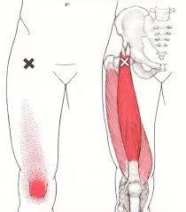 トリガー大腿直筋1.jpg