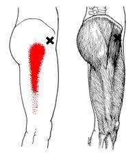 トリガー筋膜腸筋1.jpg